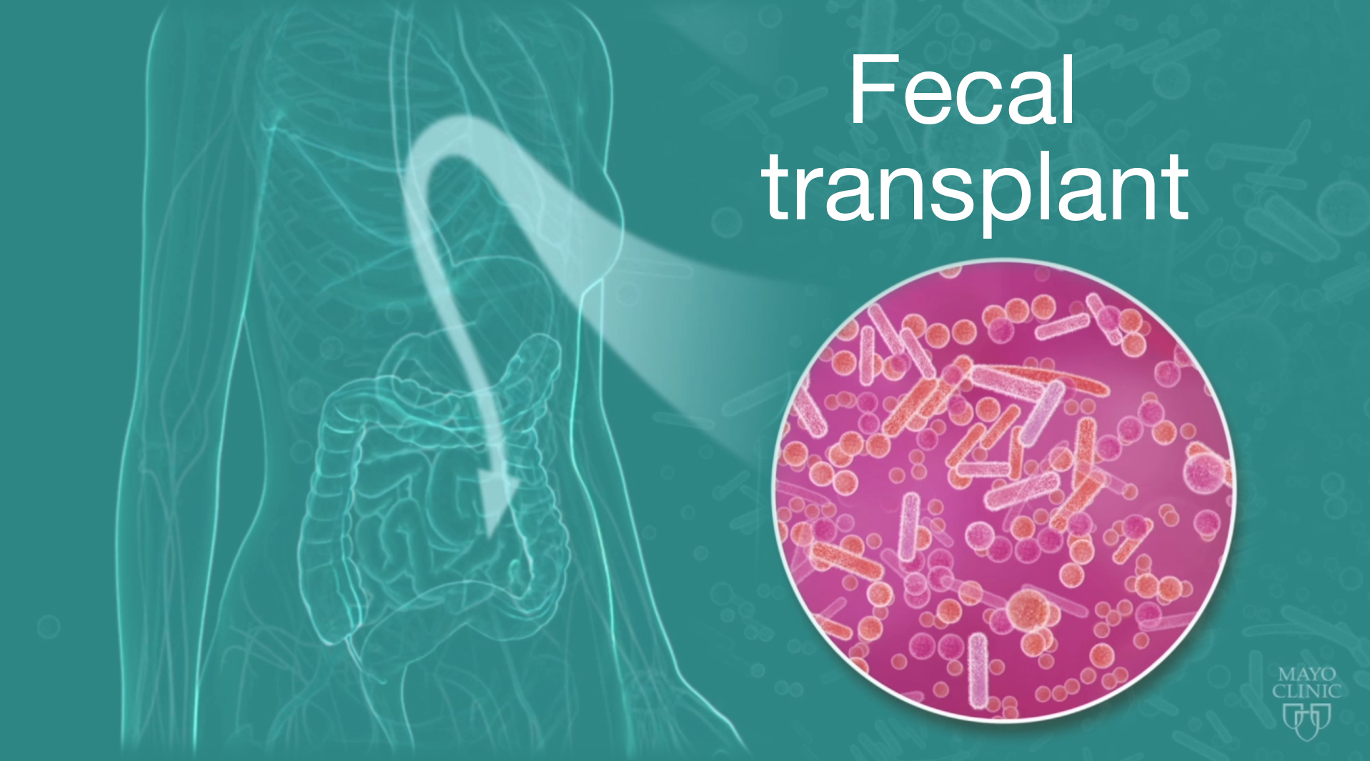 Microbial Transplant May Treat Gut >> Fecal Transplant May Improve Behavior In Kids With Autism Special